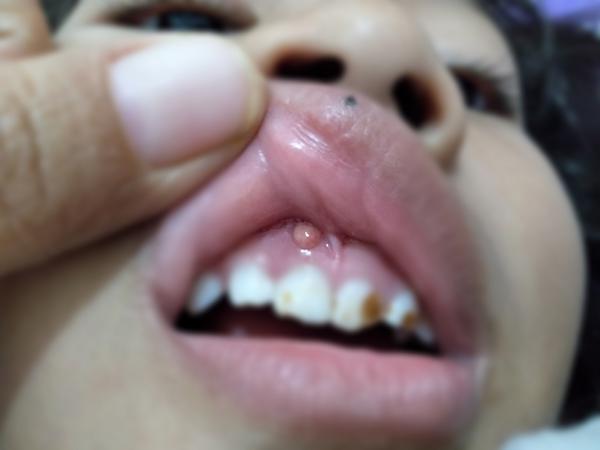 gejala abses gigi